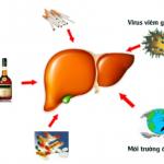 Hiểu biết về Viêm gan B và cách điều trị